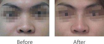 Rhinoplasty Procedure | Shinagawa Lasik & Aesthetics Philippines