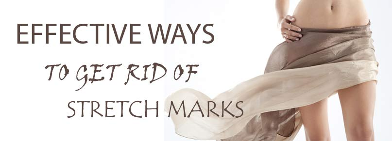 effective ways to get rid of stretch marks