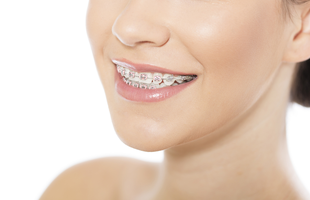 Risk of Wearing Cheap and Fake Braces