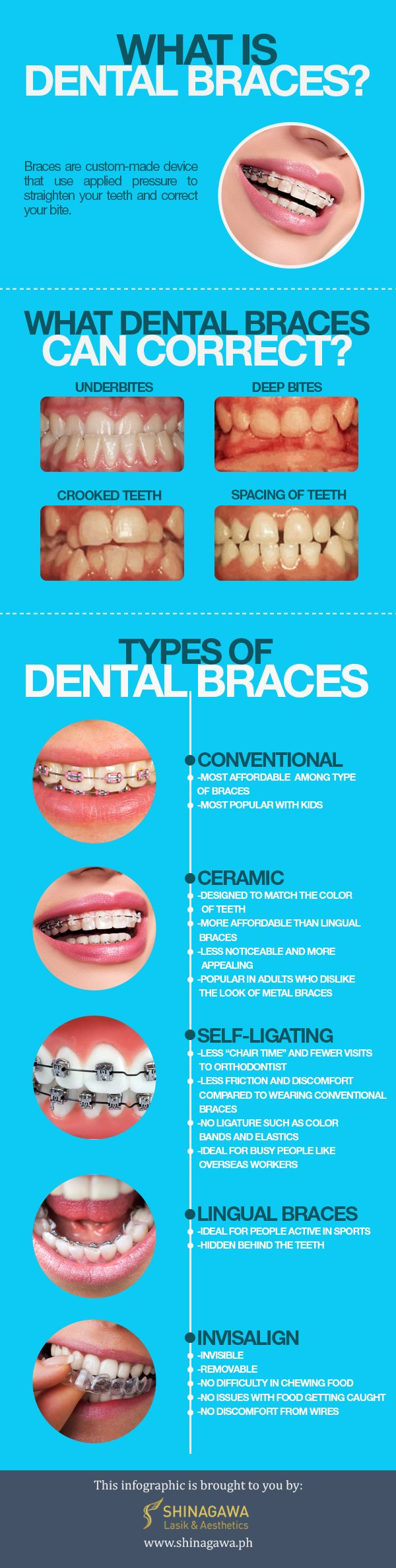 What is Dental Braces by Shinagawa.ph