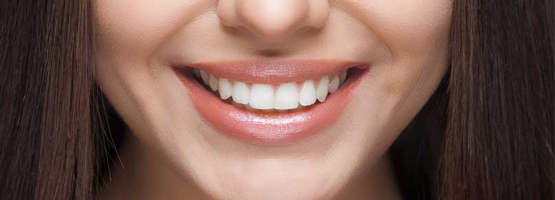 Maintaning Teeth After Whitening Treatment Blog Photo