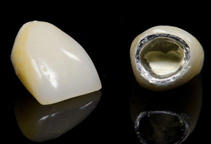 Porcelain-fused-to-metal (PFM) Teeth