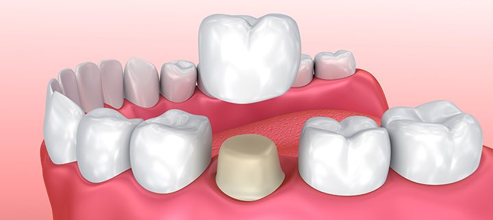 Dental Crowning for a Better Smile