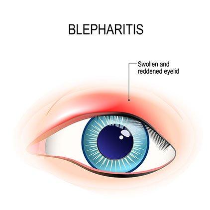 Blepharitis Philippines