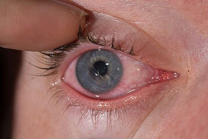 Corneal Abrasion Philippines