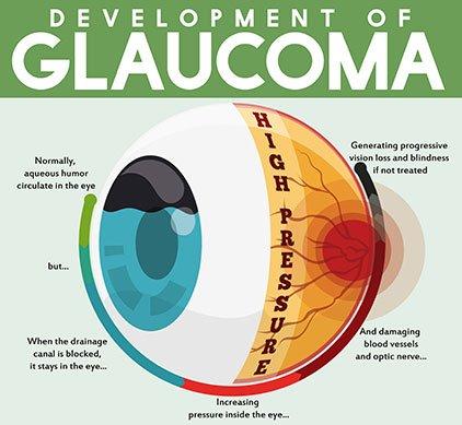 Glaucoma Philippines