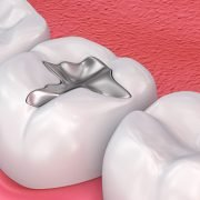 What Dental Filling Can Do For Your Teeth