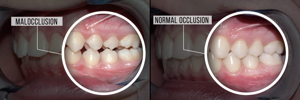 Moloccusion and Normal Occlusion Comparison