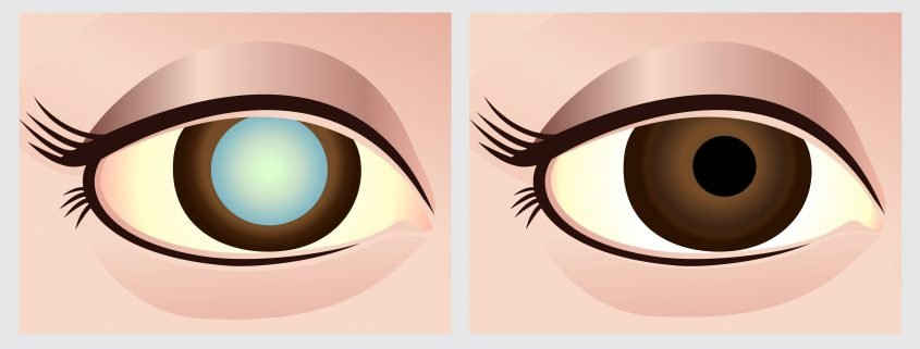 Representation of Before and After Cataract Surgery