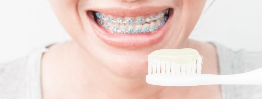 Proper Care for Your Braces