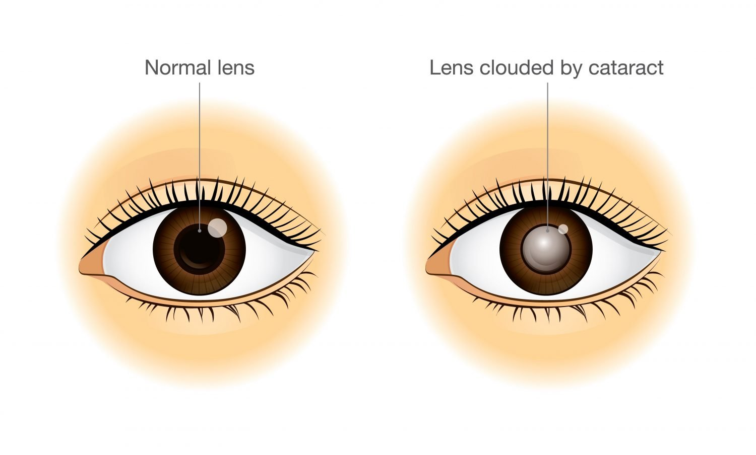 Comparison of Normal Lens and Lens clouded by Cataract
