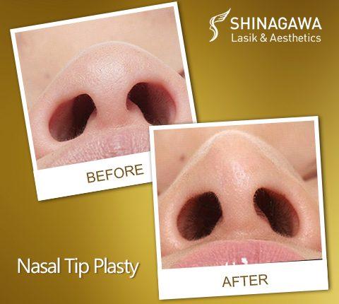 Nasal Tip Plasty at Shinagawa Lasik & Aesthetics Philippines