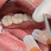 Why Do You Need Dental Filling?