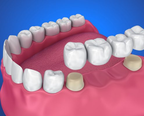 Representation of Dental Bridges and Crowns