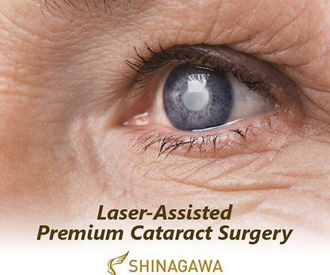 50% OFF on Cataract Consultation at Shinagawa!