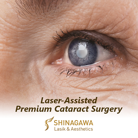 50% OFF on Cataract Consultation at Shinagawa!
