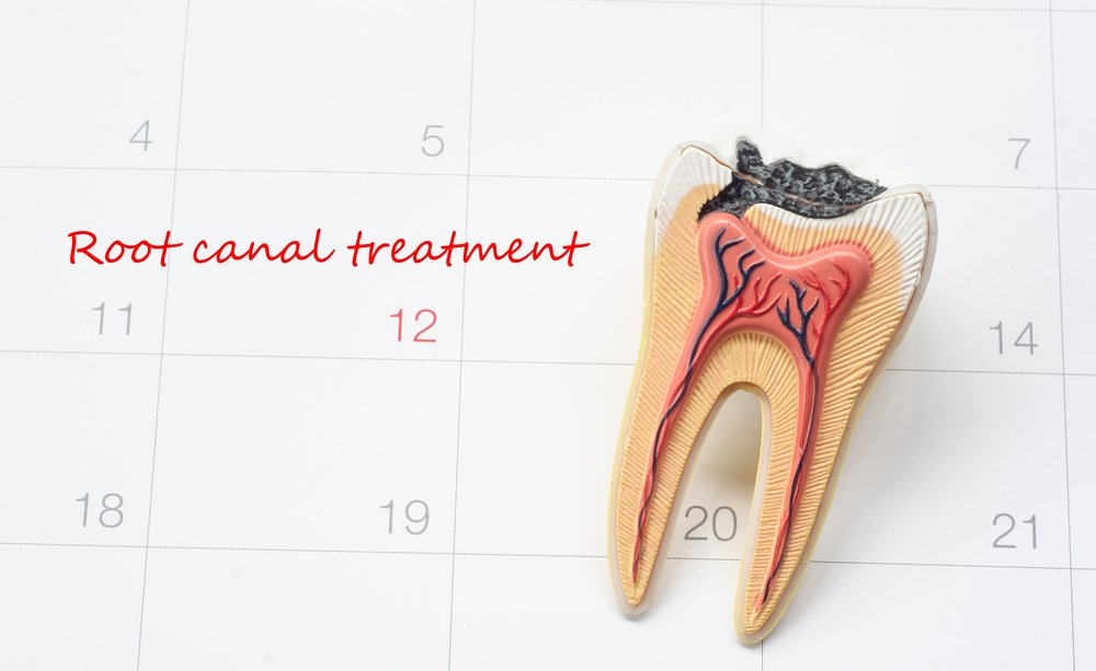 Save Your Tooth through Root Canal Treatment | Shinagawa PH