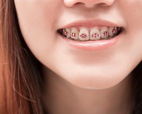 Dental Braces Presentation