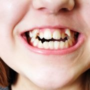 Knowing if your Teeth are Crooked or your Bite is Misaligned 1