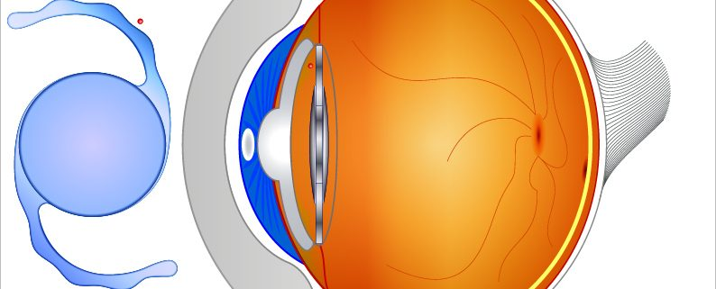 What Are The Differences Of IOLs In Cataract Surgery?