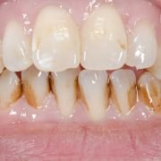 Do You Have Yellow Teeth? Know What Causes It