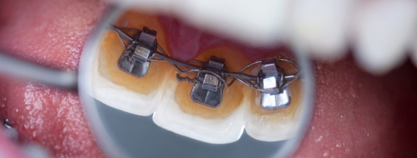 Taking Care Of Your Lingual Braces