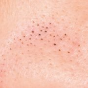 Ways To Prevent And Effectively Treat Blackheads