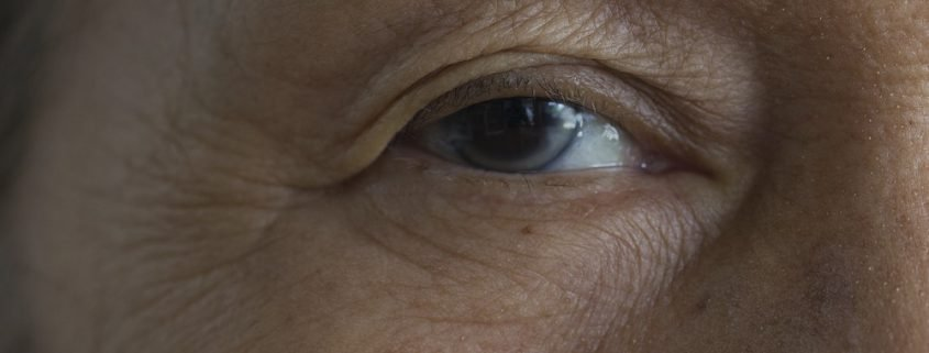 Does a Cataract Need to be Fully Ripe for it to be Removed?