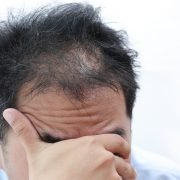 Common Causes Of Hair Loss | Shinagawa Aesthetics Blog