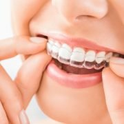 Invisalign The Modern Method Of Teeth Aligning 1 | Shinagawa Dental Blog