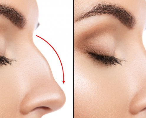 Before & After Rhinoplasty Procedure | Shinagawa Aesthetics Blog