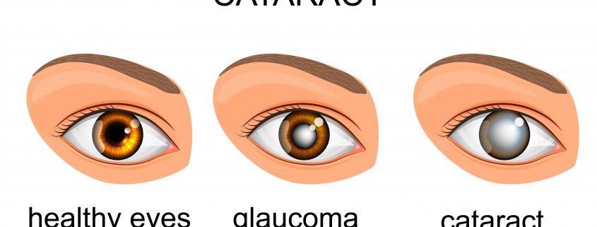 Differences Between Cataract And Glaucoma | Shinagawa Cataract Blog