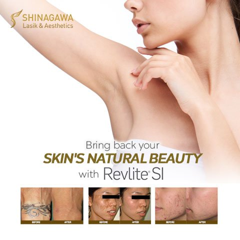 Revolutionary Skin Treatments with RevLite SI Shinagawa PH