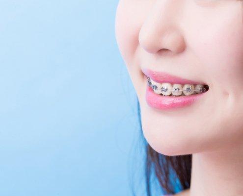 Can Braces Improve The Shape Of Your Face | Shinagawa Dental Blog