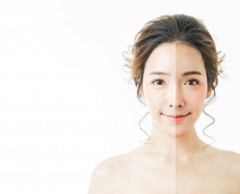 This The Season To Be Hair and Blemish-Free Skin | Shinagawa Aesthetics Blog