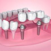 Advantages That Dental Bridges Can Give | Shinagawa Dental Blog
