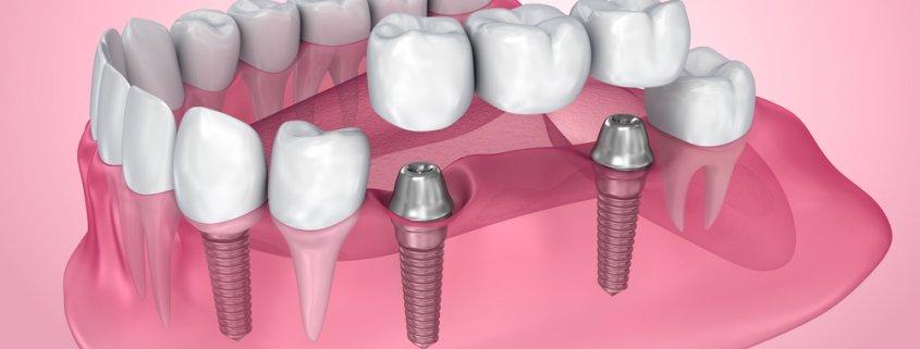 Advantages That Dental Bridges Can Give   Shinagawa Dental Blog