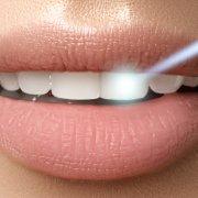 Post Care Musts After Laser Teeth Whitening | Shinagawa Dental Blog