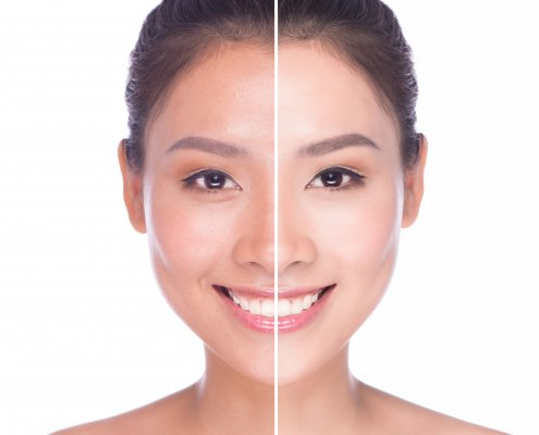 Have a Glowing Skin | Shinagawa Aesthetics Blog