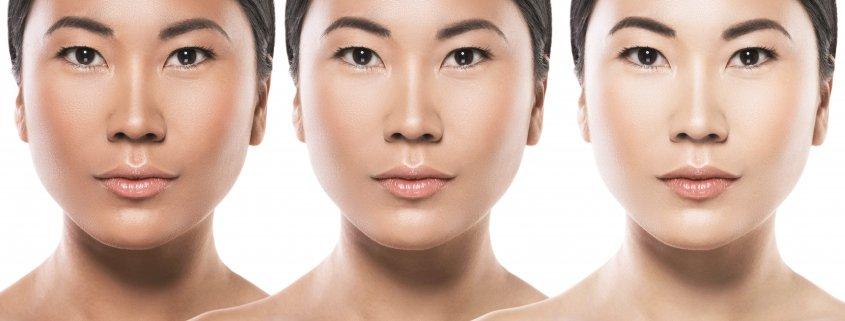 Skin White and 7 Safe Alternatives How to Get Glowing | Shinagawa Aesthetics Blog