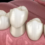 Dental Crown For Your Damaged Tooth | Shinagawa Dental Blog