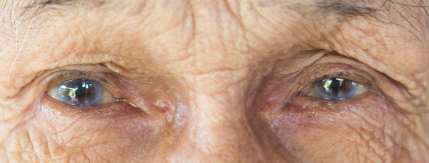 The Changes In Your Vision Due To Cataract | Shnagawa Cataract Blog
