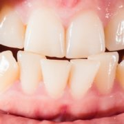 What Causes Crooked Teeth | Shinagawa Dental Blog