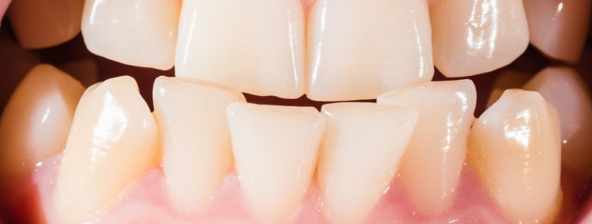 What Causes Crooked Teeth | Shinagawa Dental Blog