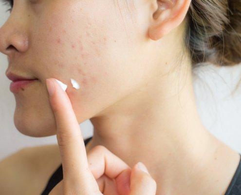 Dry and Oily Skin | Shinagawa Aesthetics Blog