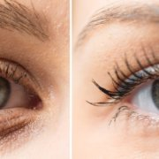 The Benefits of Blepharoplasty | Shinagawa Aesthetics Blog