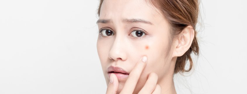 The Difference Between Dry And Oily Acne | Shinagawa Aesthetics Blog