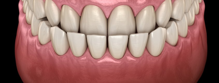 Underbite Explanation | Shinagawa Dental Blog