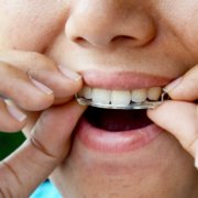 Ways To Get The Most Out Of Your Dental Treatment   Shinagawa Dental Blog