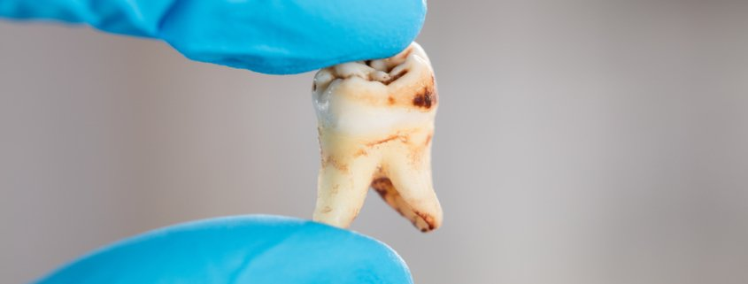 How To Effectively Prevent Tooth Decay | Shinagawa Dental Blog